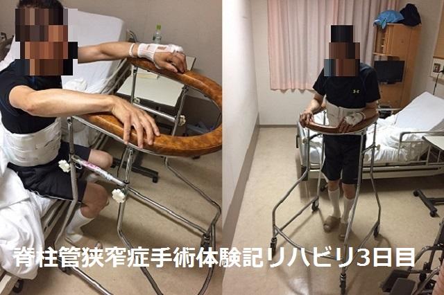 脊柱管狭窄症 手術 体験