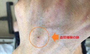 脊柱管狭窄症 手術 体験記