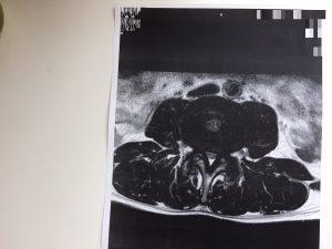 脊柱管狭窄症 手術 ボルト