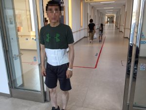 脊柱管狭窄症 手術 退院