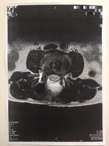 脊柱管狭窄症 MRI