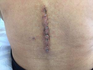 脊柱管狭窄症 手術 傷口