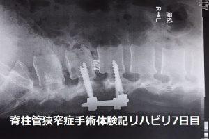 脊柱管狭窄症 手術体験記