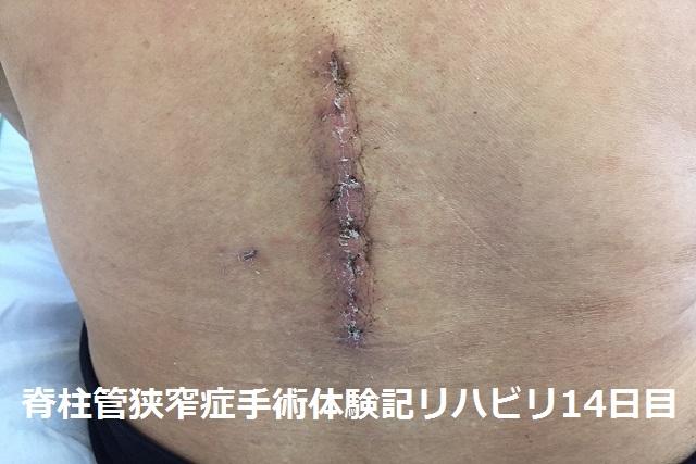 脊柱管狭窄症 リハビリ