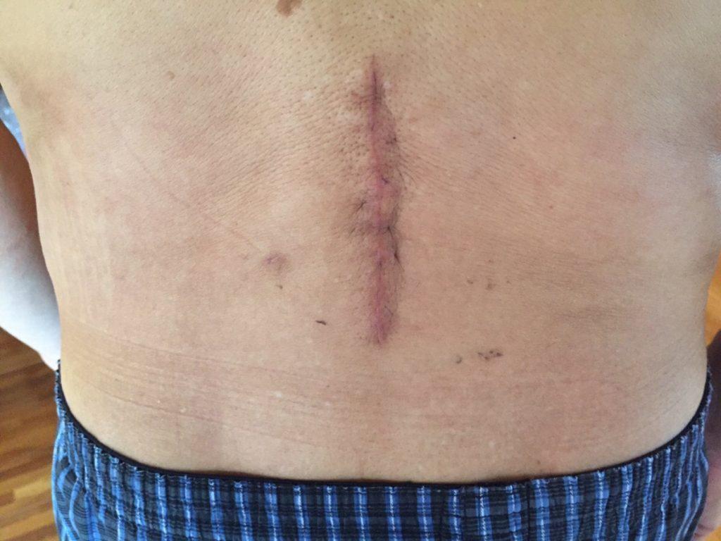 脊柱管狭窄症 手術 傷跡