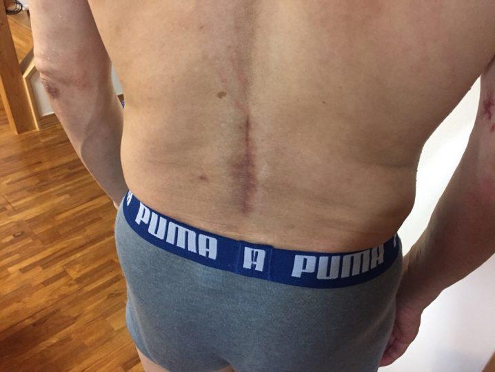 脊柱管狭窄症 手術 傷
