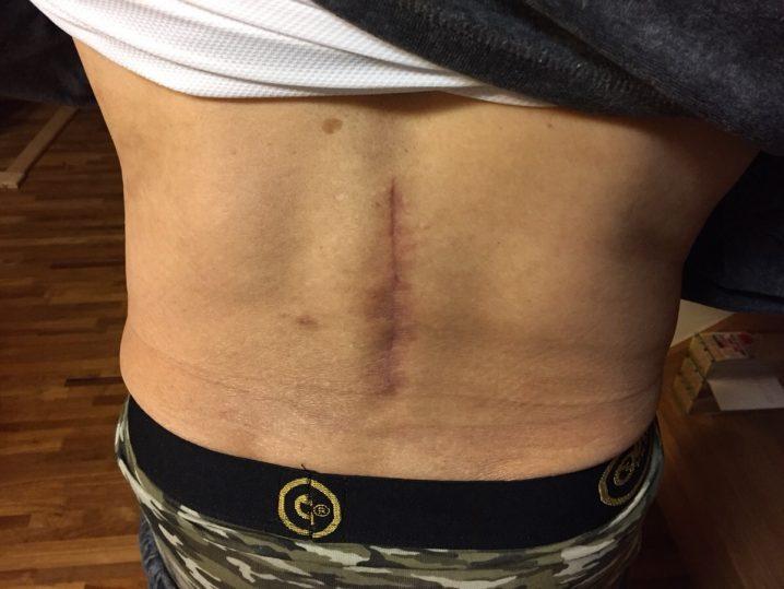 脊柱管狭窄症 手術跡